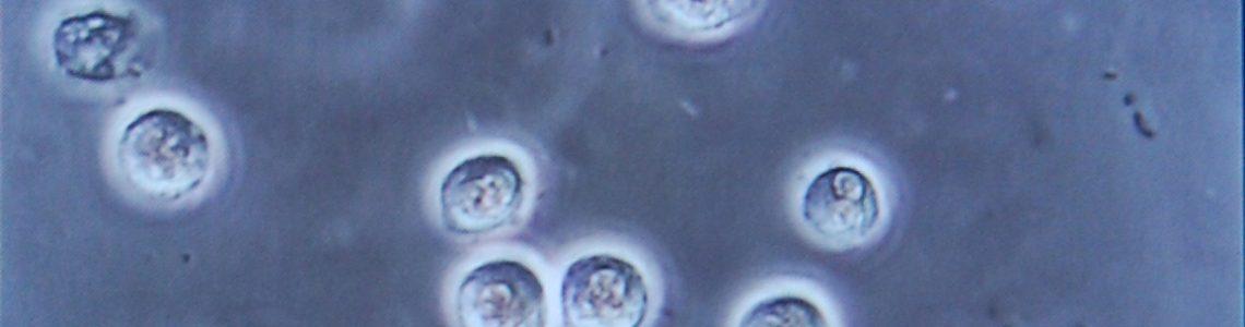 Bacteriuria_pyuria